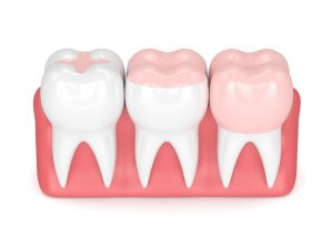 Inlays And Onlays - The Haringey Dentist